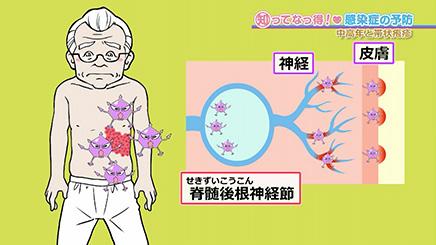 帯状疱疹 感染